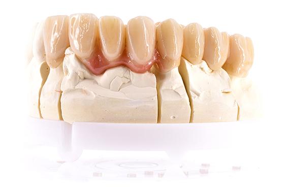 ZrO2-festsitzender Zahnersatz